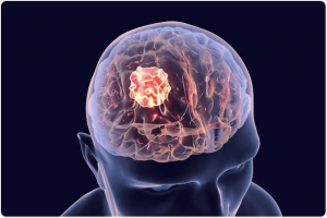 early symptoms of Brain Tumor